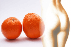 EMSRaum - Orangenhaut